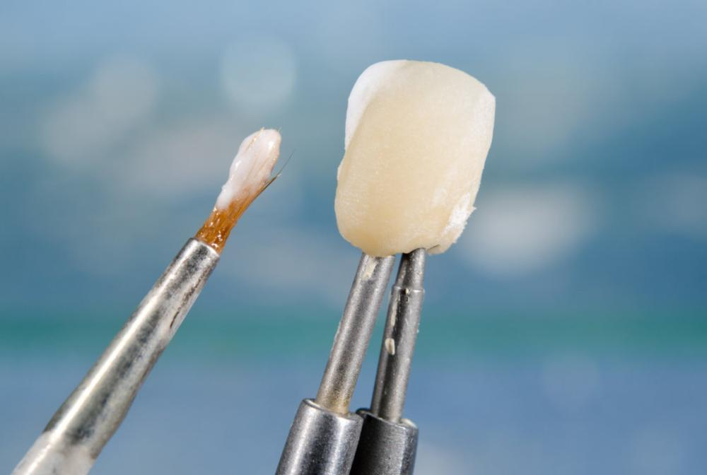 Dental Crown | Burnaby BC Dentist