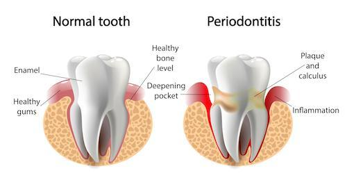 Diagram of healthy and sick gums | Dentist Burnaby BC