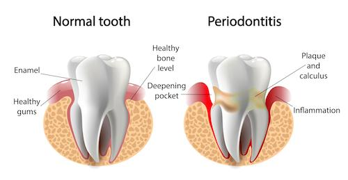 Diagram showing a normal tooth and one with periodontitis | Dentist Burnaby BC