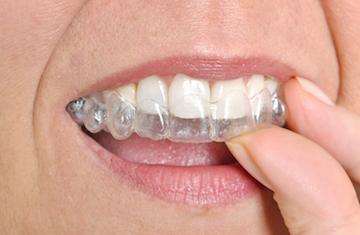 Woman using clear braces in burnaby