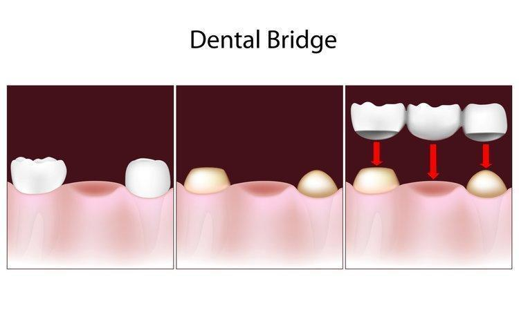 dental bridge diagram | Dentist Burnaby BC