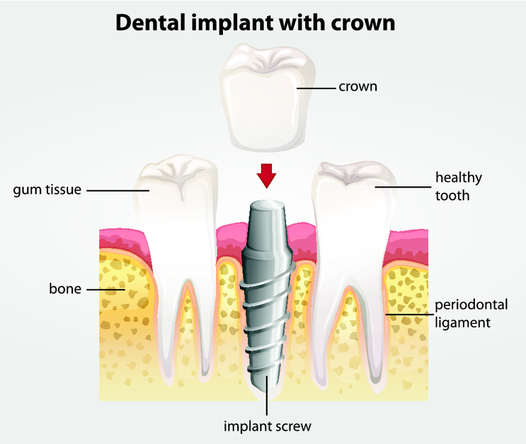 Diagram of Dental Implants | Dentist Burnaby BC