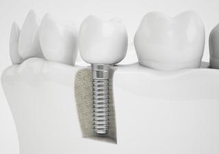 Dental Implants | Central Park Dental Clinic