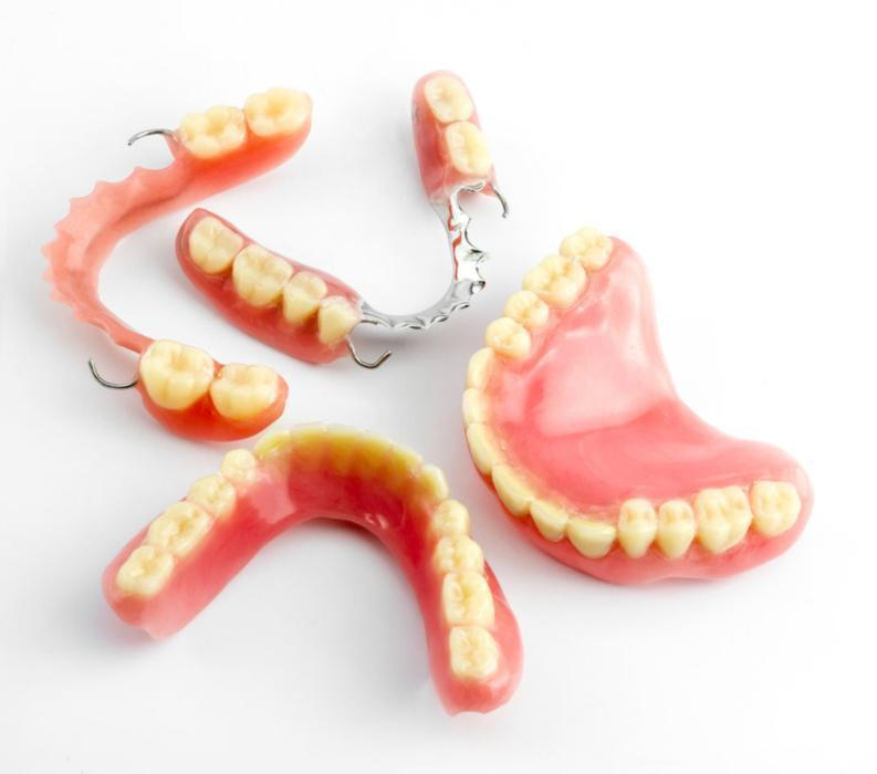 Types of dentures | Dentist Burnaby BC