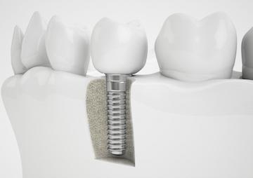 Dental implant diagram | Dentist Burnaby BC