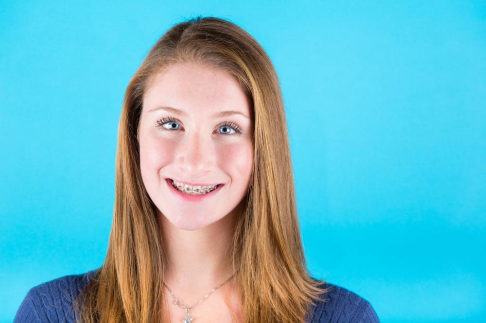 Young Girl in braces | Dentist Burnaby BC