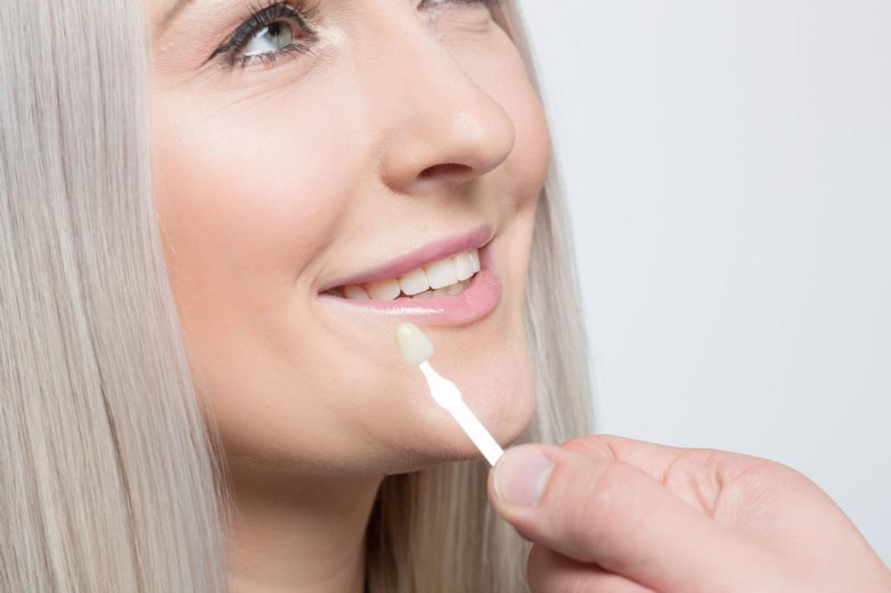 Woman getting veneers | Burnaby BC Dentist