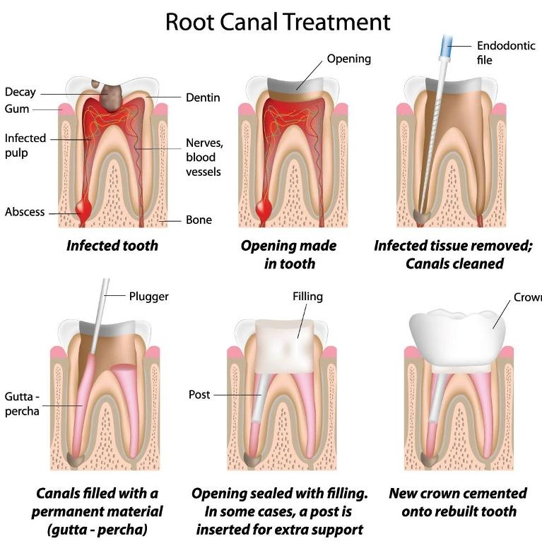 Root Canal Procedure Diagram | Dentist Burnaby bC