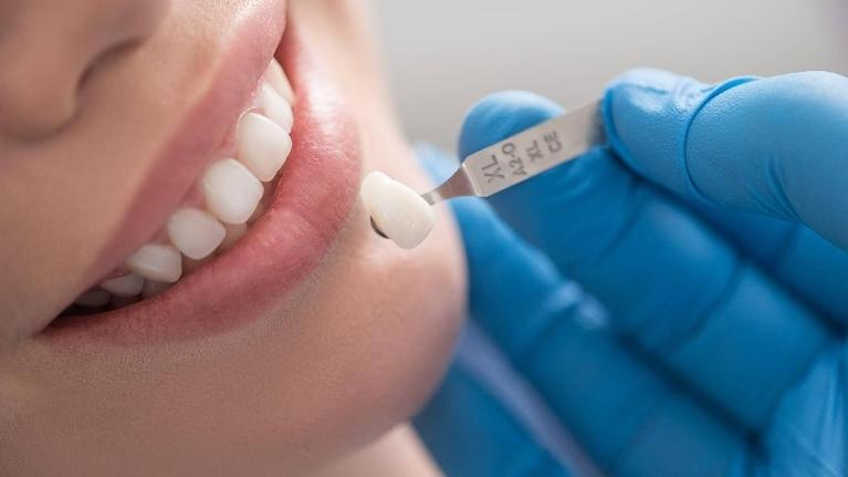 Dentist comparing veneer to patient's tooth | dentist burnaby bc