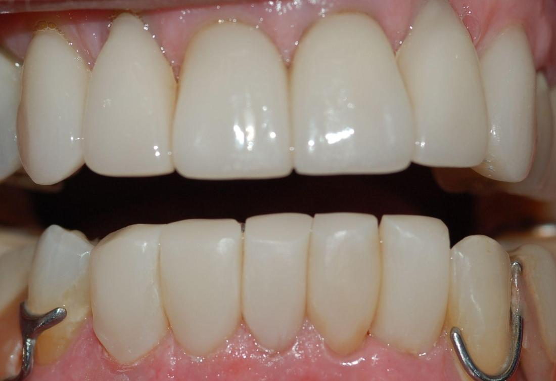Bottom teeth have been restored using bioclear technology