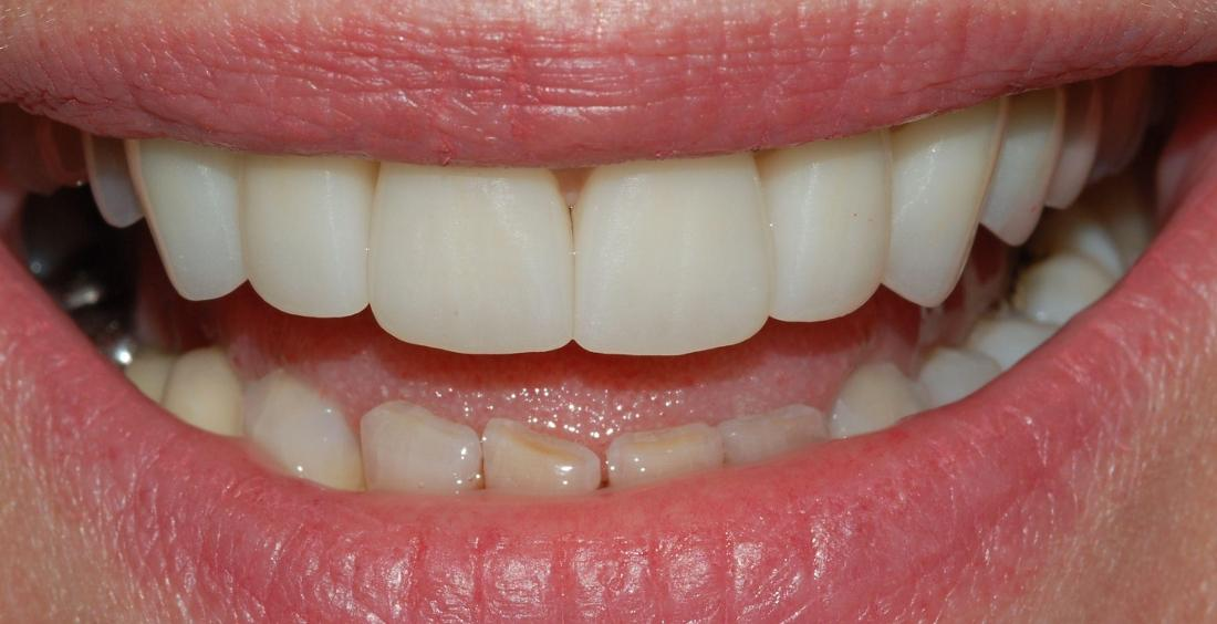 Crowns used on the top front teeth