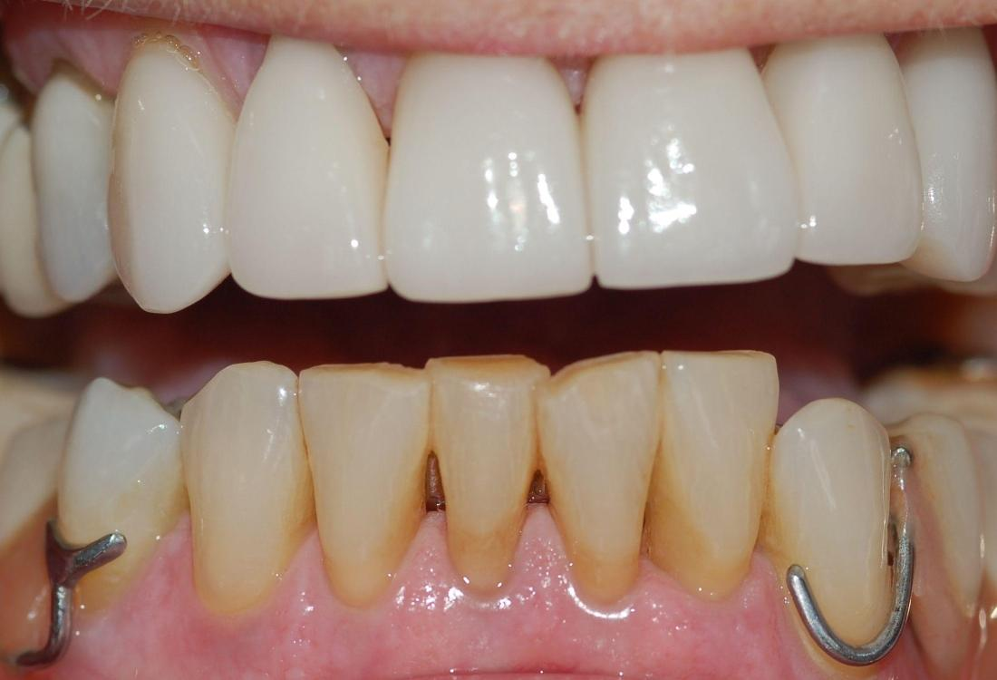 Bottom teeth are discoloured and misaligned