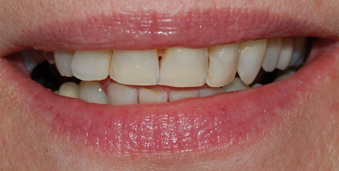 Small gap in front teeth and slightly discoloured